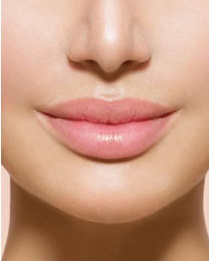 Коррекция губ в салоне красоты Jadore г.Троицк