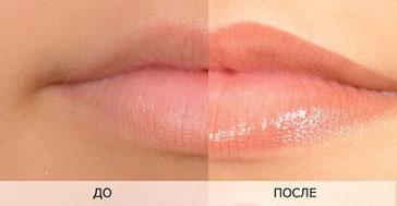 Пигментация губ в салоне красоты Jadore До/После процедуры